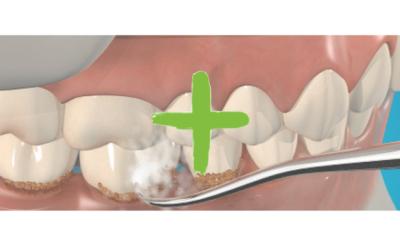 Igiene Orale ogni 6 mesi . Perchè ?