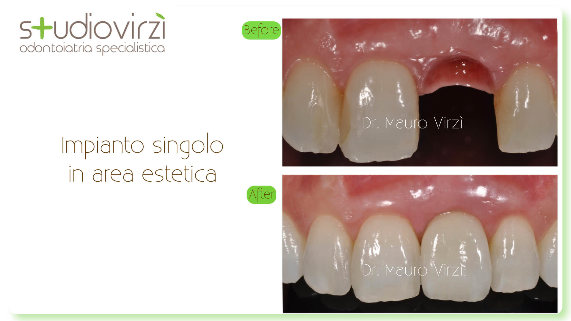 Studio Virzì-CASI CLINICI 07:2018.031