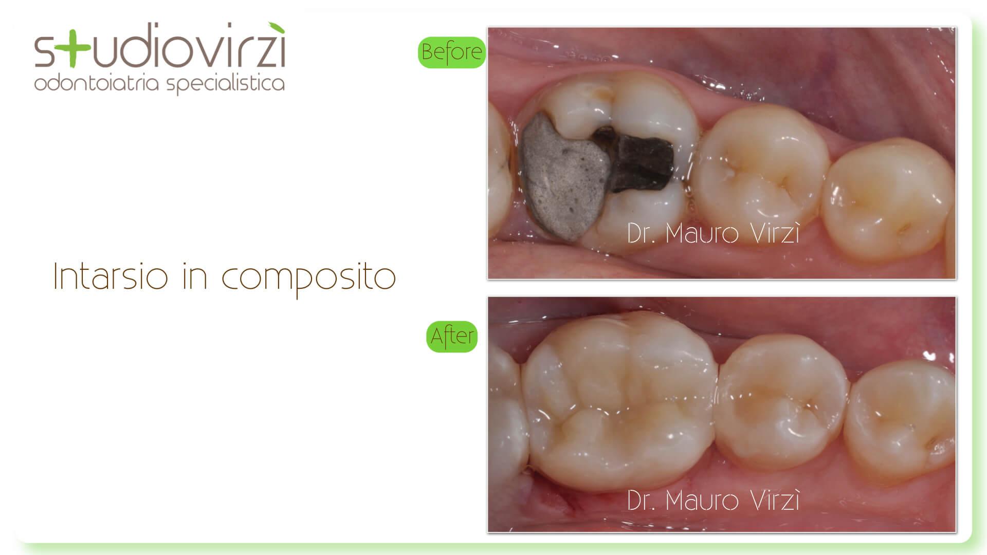 Studio Virzì-CASI CLINICI 07:2018.038