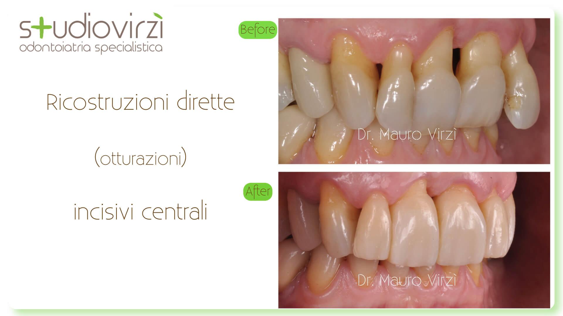 Studio Virzì-CASI CLINICI 07:2018.048