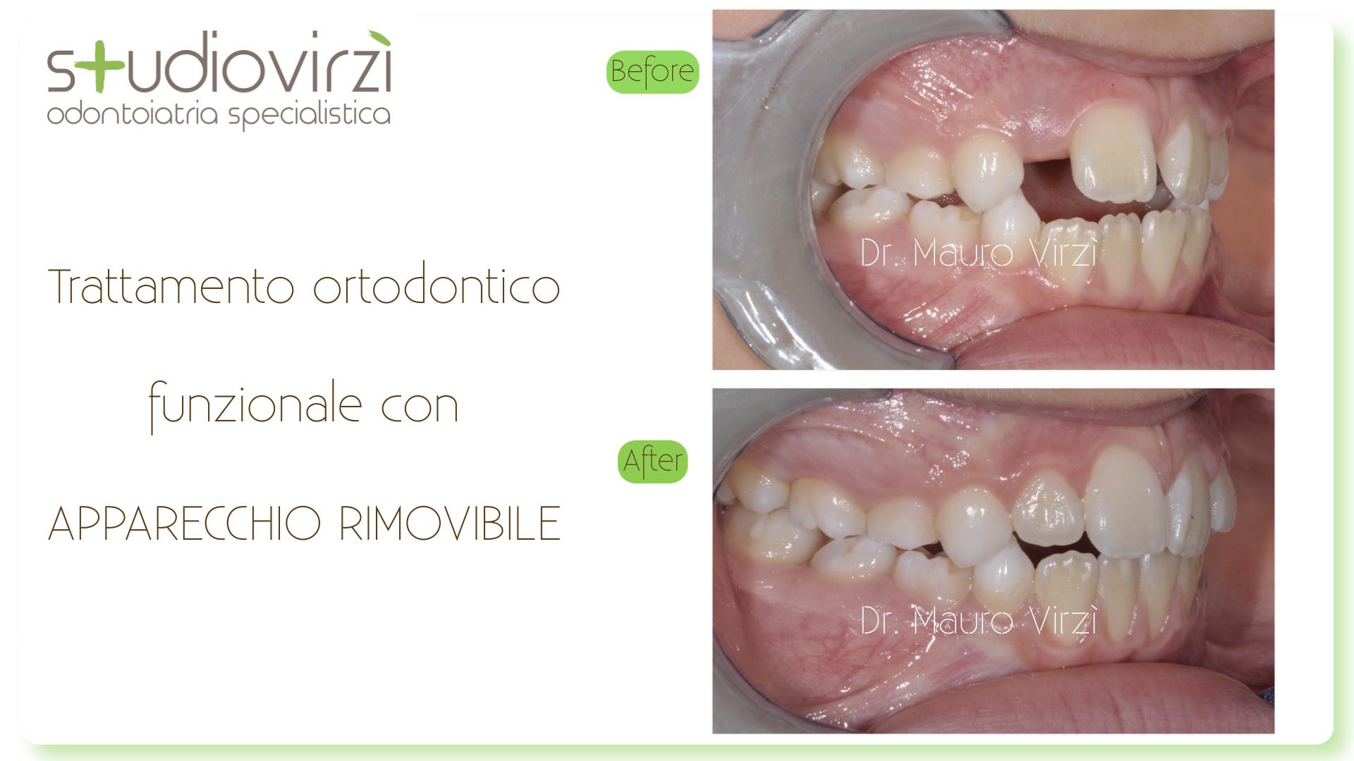 Studio Virzì-CASI CLINICI 07:2018.119