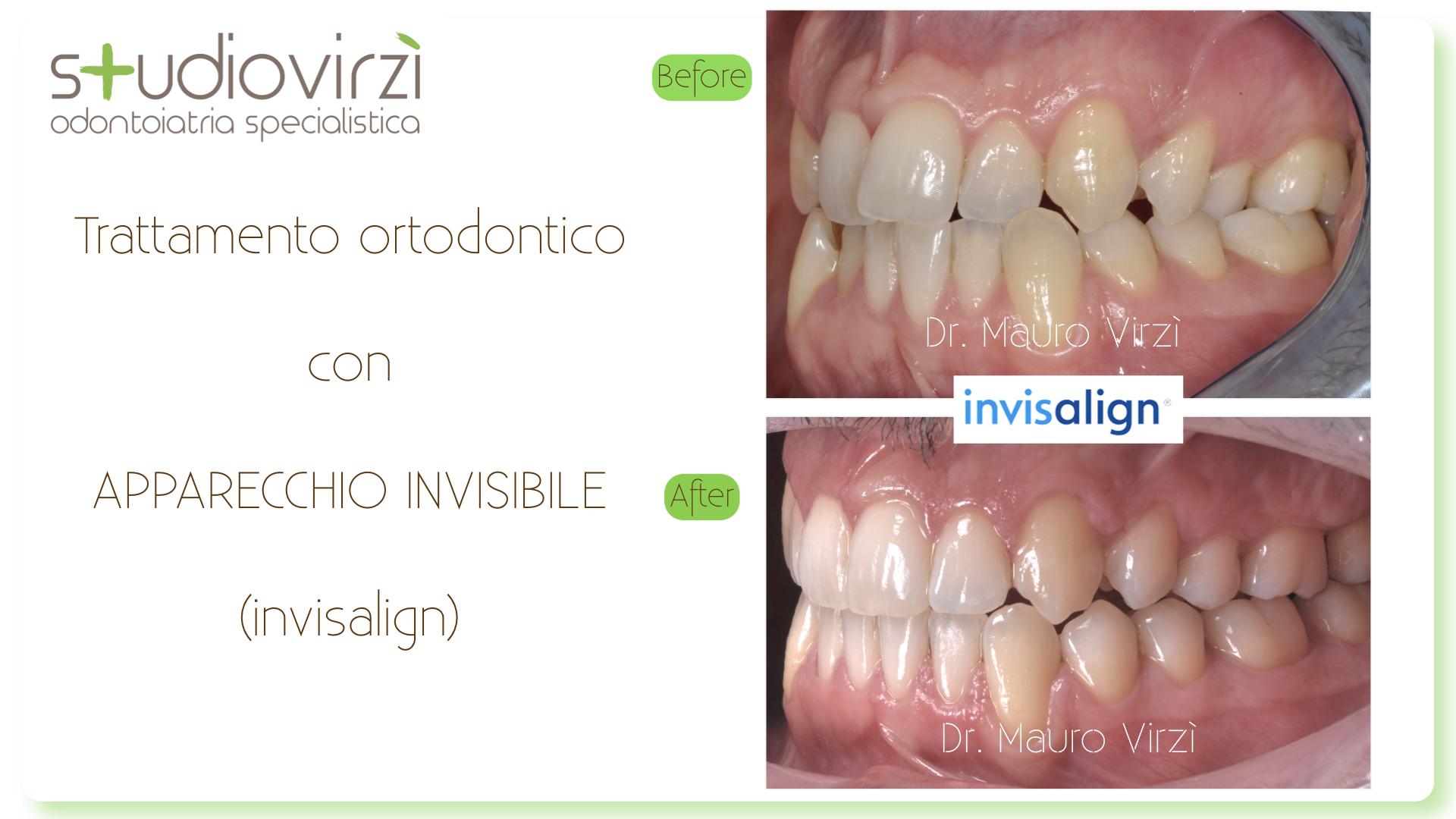 Studio Virzì-CASI CLINICI 07:2018.126
