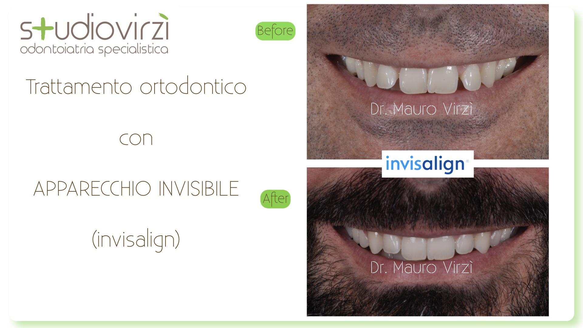Studio Virzì-CASI CLINICI 07:2018.130
