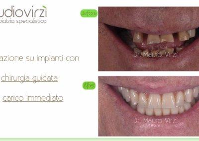Studio Virzì-CASI CLINICI 07:2018.026