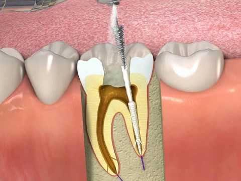 Dente devitalizzato: perchè fa male?