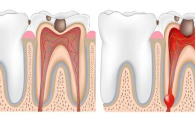 Granuloma dentale: cause, sintomi e trattamenti