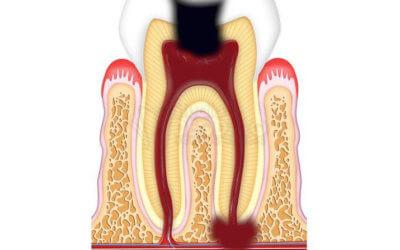 Ascesso dentale: cos'é e come va curato