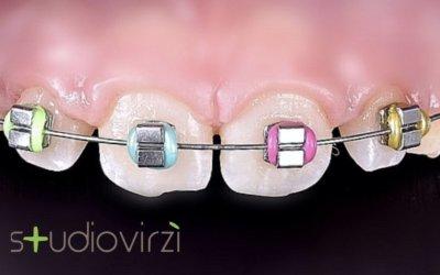 Cos'è l'ortodonzia intercettiva? Quando la prima visita ortodontica?