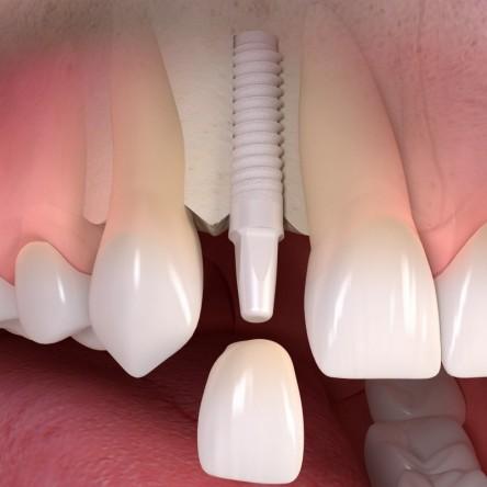 Impianti dentali in ceramica: la rivoluzione dell'odontoiatria