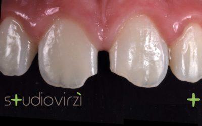 Traumi dentali: cosa fare?