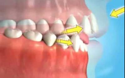 Deglutizione disfunzionale e conseguenze ortodontiche